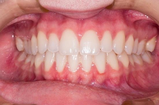 Vsako bolezen dlesni lahko preprečimo